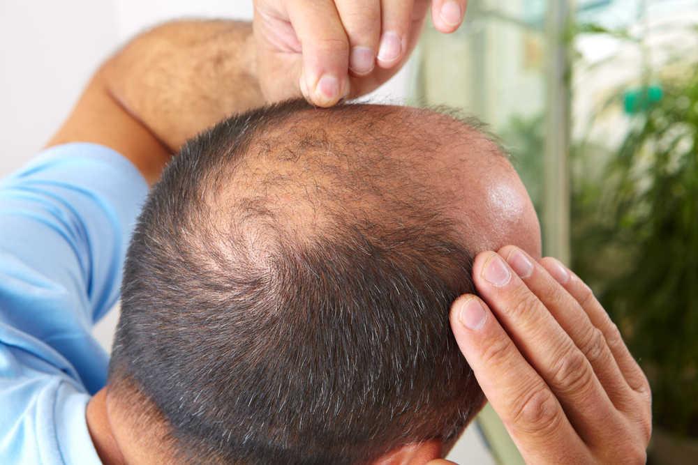 La alopecia tiene solución, nosotros te la damos